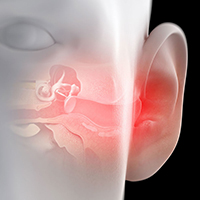 Nina-kõrva-kurguhaigused